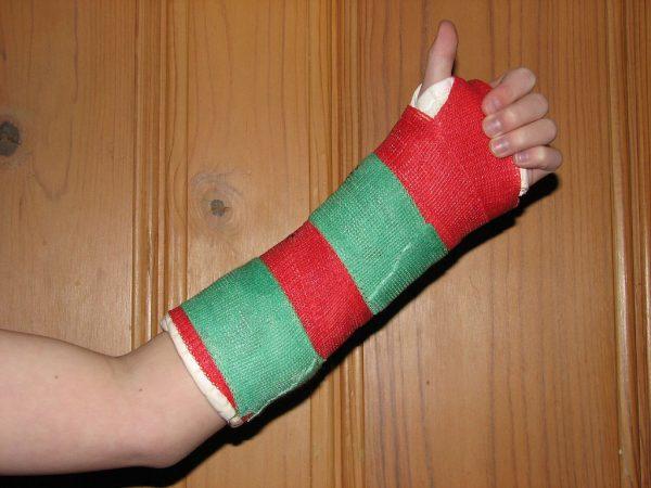 a broken arm